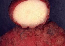 Les parasites dans lestomac si ne pas traiter